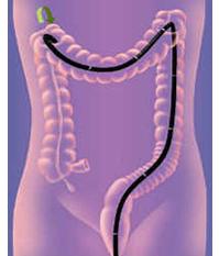 下部消化管(大腸)の検査について